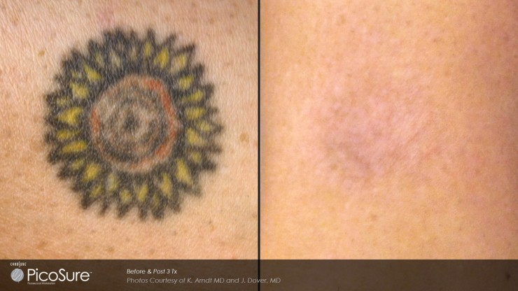 Picosure laser tattoo removal before and after 2