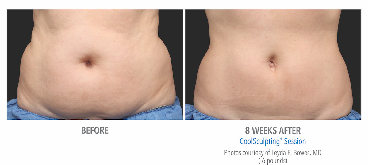 belly fat removal with CoolSculpting before and after photos