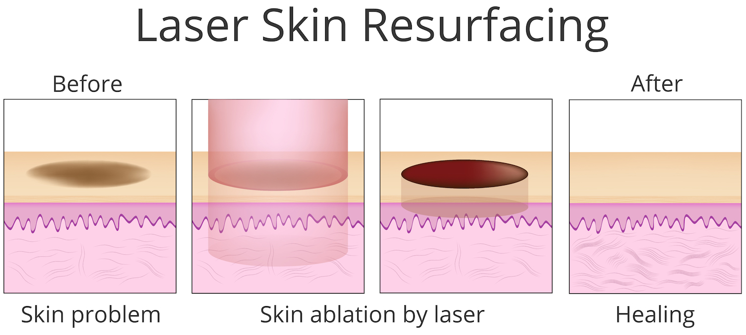 Laser skin resurfacing with an ablative laser - diagram