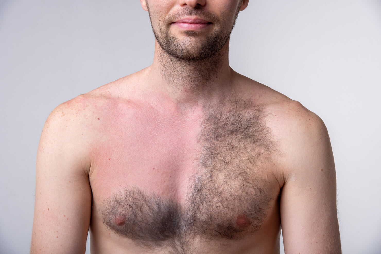 Common Laser Hair Removal Side Effects And How To Fix Or Prevent Them