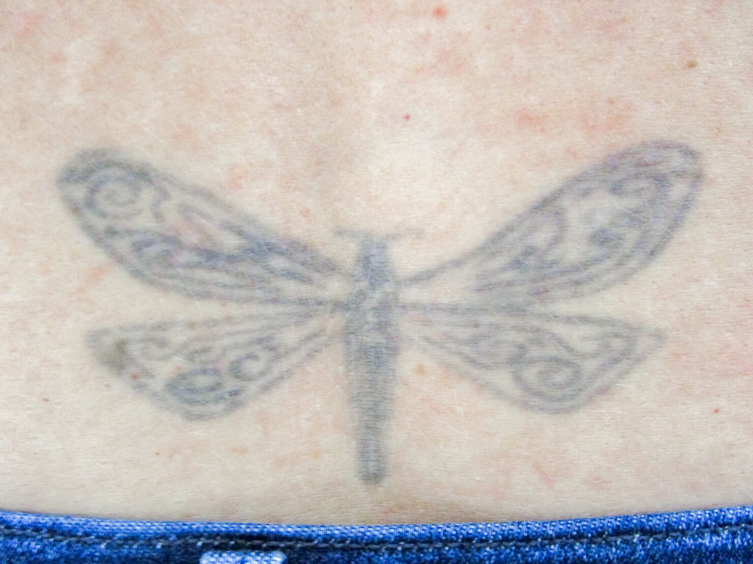 no treatment with enlighten laser tattoo removal in surrey - back butterfly before photo