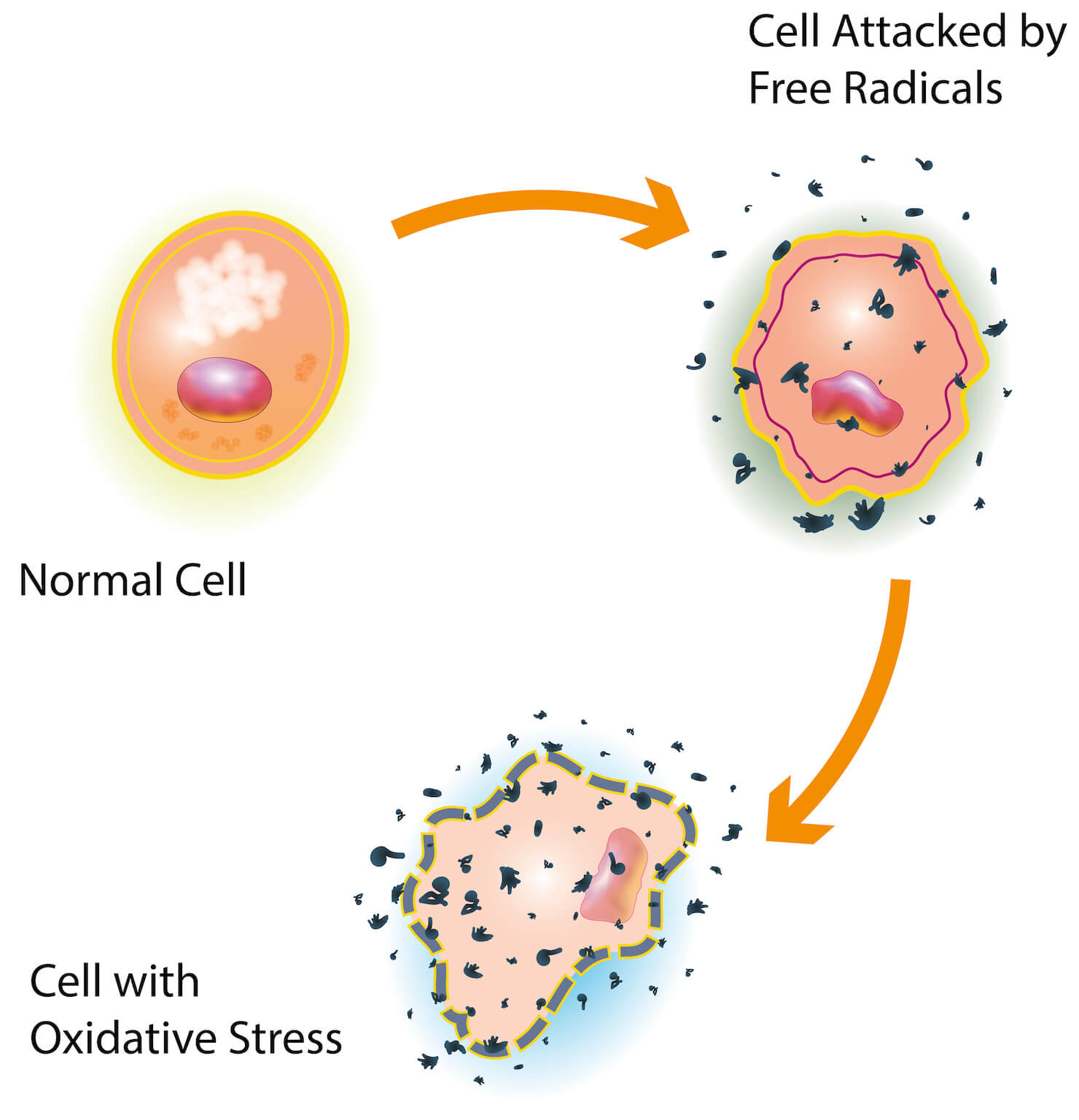 Free radical damage on cells oxidizing - diagram of oxidative stress