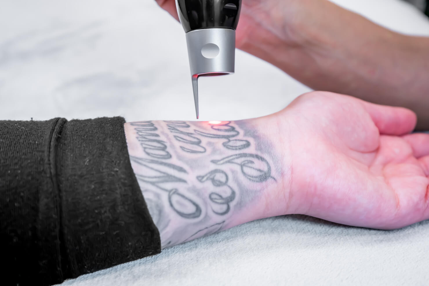 close up of Picosure laser tattoo removal in surrey with technician