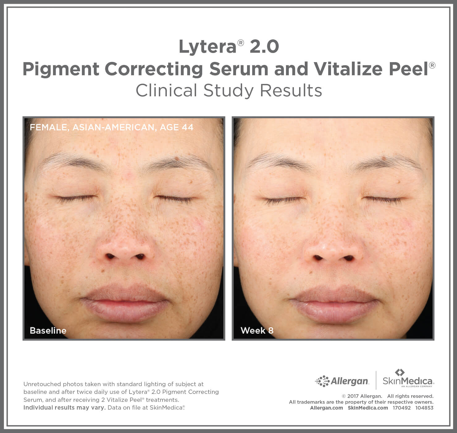 SkinMedica Before and After photo of Lytera 2.0 Pigment Correcting Serum with Vitalize Peel - high end skincare results from clinical study