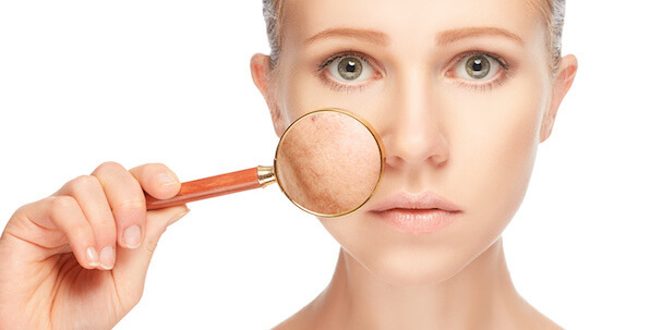 woman with sun damage on skin on cheek with magnifying glass